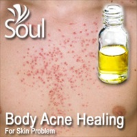 Essential Oil Body Acne Healing - 10ml